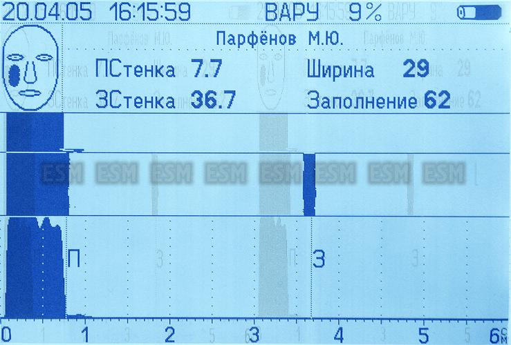 Эхосинускоп АНГИОДИН-Лор
