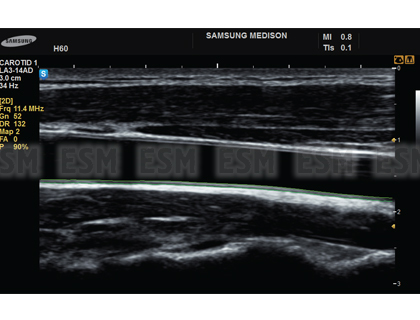УЗИ сканер UGEO H60