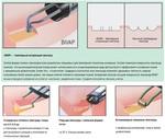 Биполярный вапоризационный электрод BIVAP