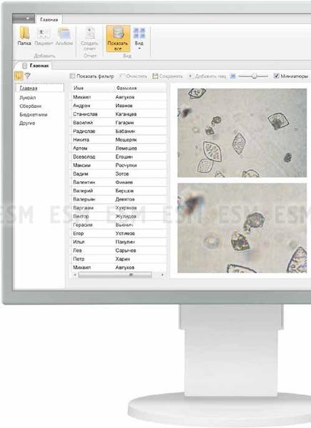 Vision Uri® Integro Интегрированное решение для анализа мочи