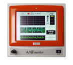 "Монитор ""ANI Monitoring System"""